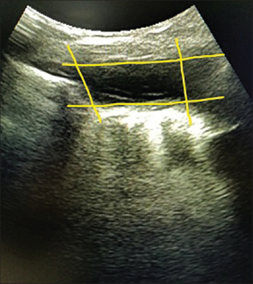 Figure 13: Image depicting the QUAD sign in pleural effusion - the 4 boundaries formed by rib shadows on either side and the visceral and parietal pleura below and above