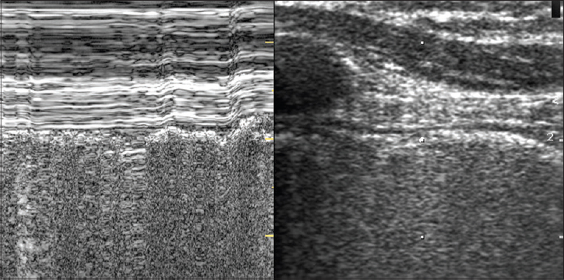 Figure 7: Image depicting the seashore appearance in M-mode as seen in normal lung ultrasound